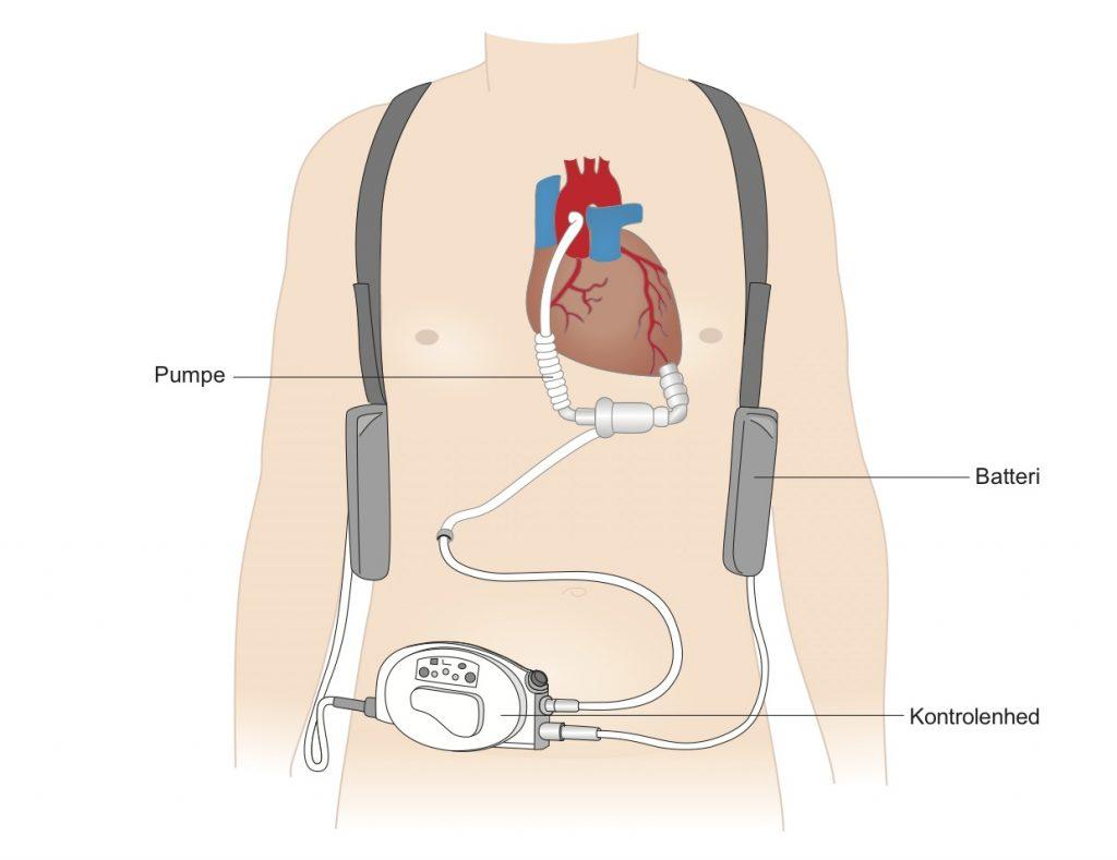 90-mekanisk-hjerte-figur-1024x789